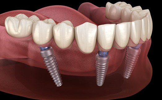 implant-retained denture on bottom arch