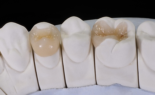 Model smile with inlay and onlay restorations