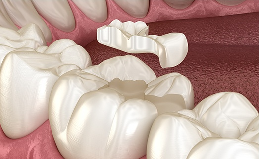 Animation of dental inlay process